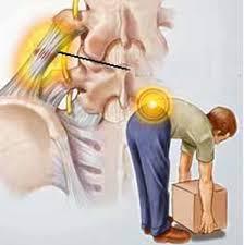 Biểu hiện bệnh thoát vị đĩa đệm