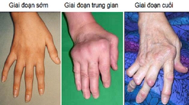 Các giai đoạn bệnh viêm đa khớp dạng thấp và cách điều trị