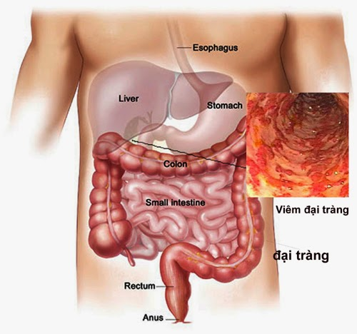 Triệu chứng và cách điều trị bệnh viêm đại tràng
