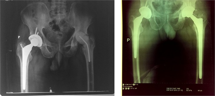 Chụp x-quang để thấy rõ các tổn thương của xương khớp khi viêm đau khớp háng