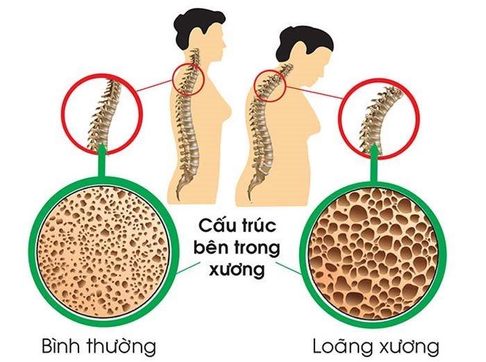 Mối liên hệ giữa loãng xương và thoái hóa khớp