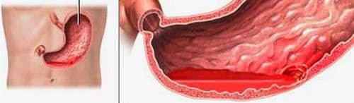 Nguyên nhân và cách điều trị chảy máu do loét dạ dày