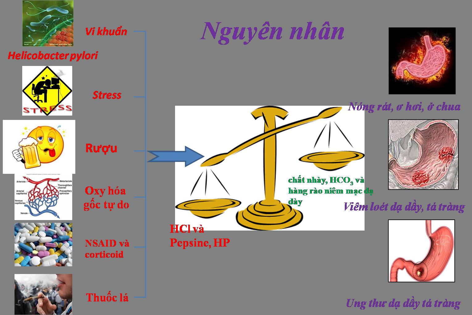 Nguyên nhân và biểu hiện viêm loét dạ dày tá tràng