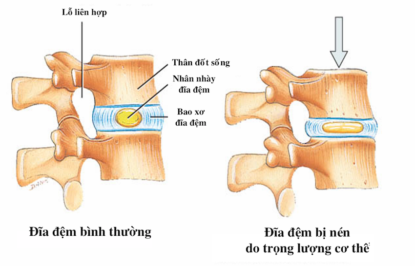 Nguyên nhân và triệu chứng bệnh xẹp đĩa đệm cột sống