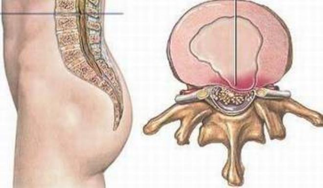 Nguyên nhân và biểu hiện bệnh phồng đĩa đệm
