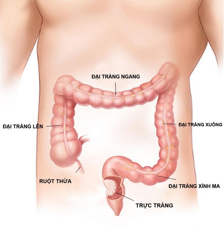 Nguyên nhân và triệu chứng bệnh viêm dạ dày ruột vi rút
