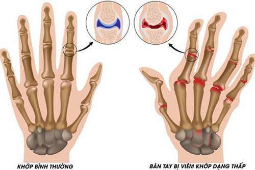Các dạng đau xương khớp thường gặp