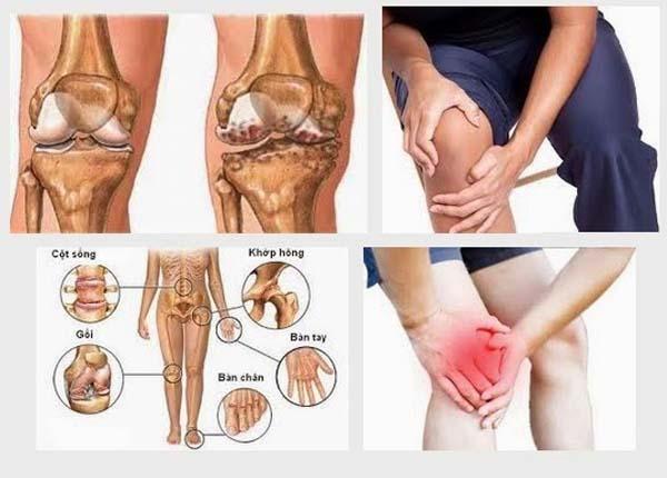 Cột sống, gối, đĩa đệm, bàn tay, bàn chân là các vị trí dễ mắc bệnh xương khớp