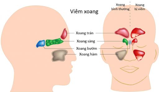 Các vị trí của bệnh viêm xoang thường gặp